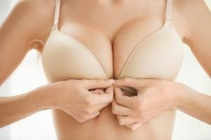 What is the IDEAL Implant?
