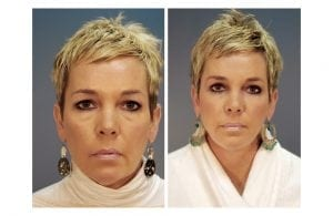 Facial Fat Grafting Before and After Photos