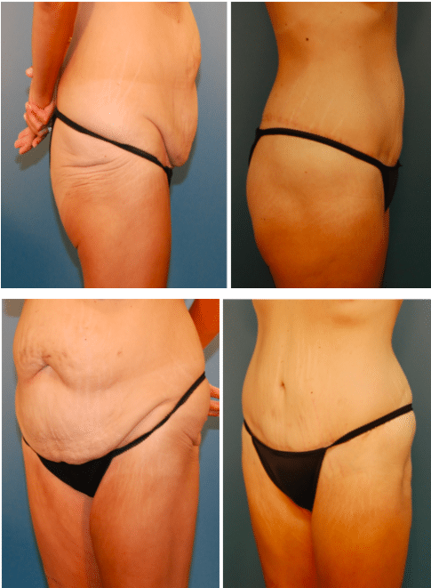 A Belt Lipectomy Following Weight Loss Grotting Cohn Plastic Surgery