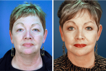 Before and After Facelift
