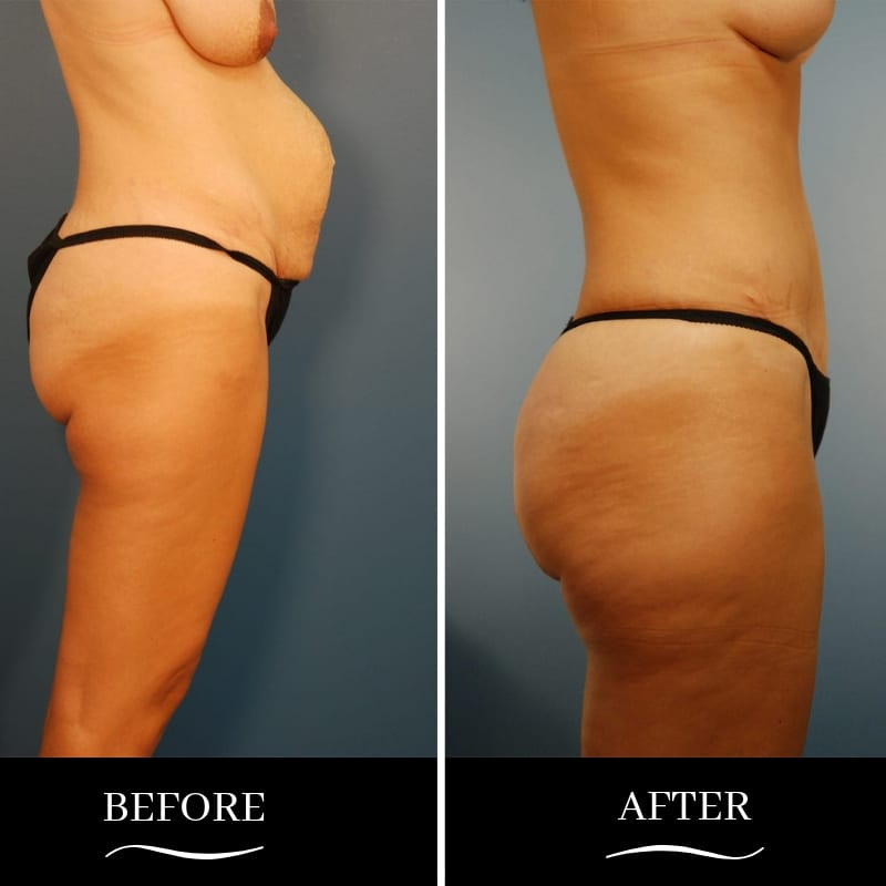 Abdominoplasty-Patient-06b-blog-ba-img