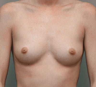 Breast Augmentation - Front view before