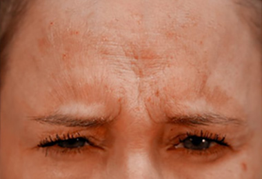 Botox patient before 2 Grotting and Cohn Plastic Surgery