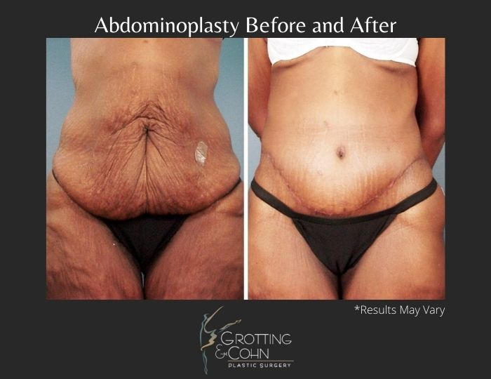 Before and after image showing the results of a tummy tuck performed in Birmingham, AL.