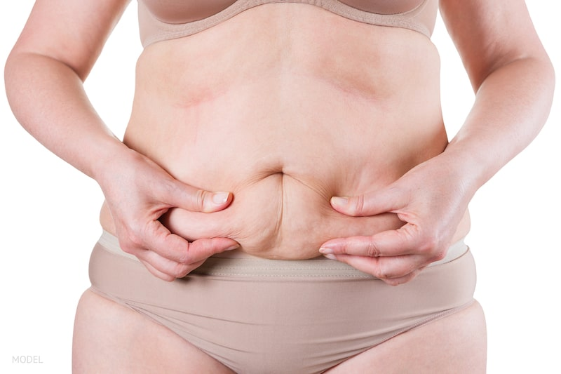 Woman grabbing excess skin and fat on her abdomen.