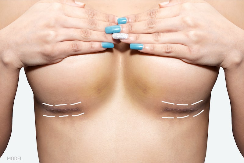 Close-up image showing inframammary scars for breast augmentation.