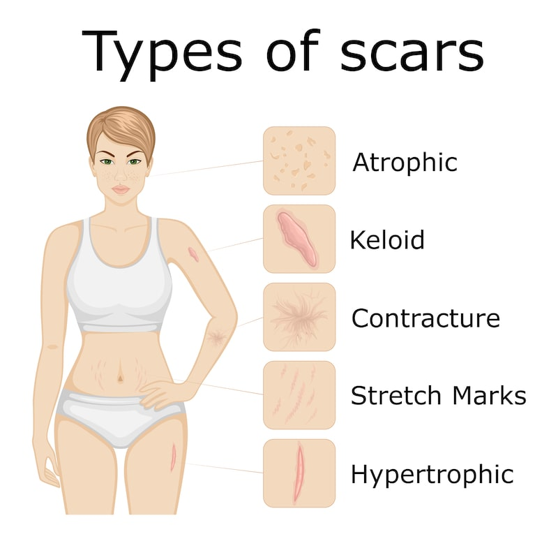 Illustration showing the various types of scars after healing..